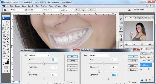 tonalità satuarazione denti
